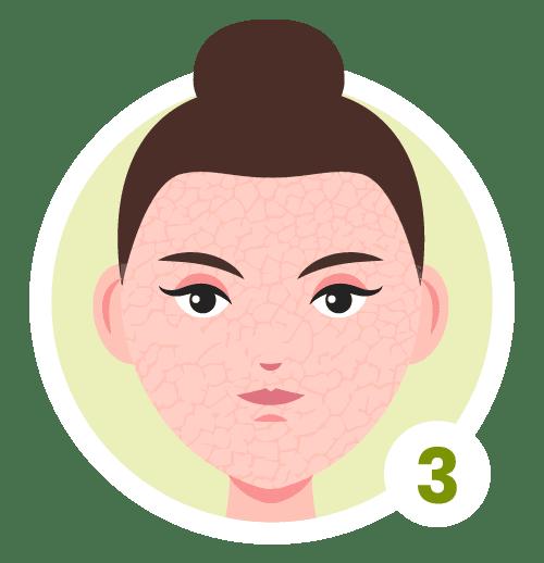 Hautzustände