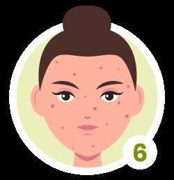 Hauttyp 6